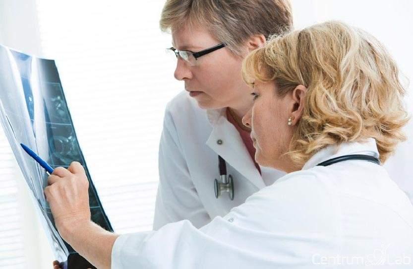 Tumormarker PSA szűrővizsgálat